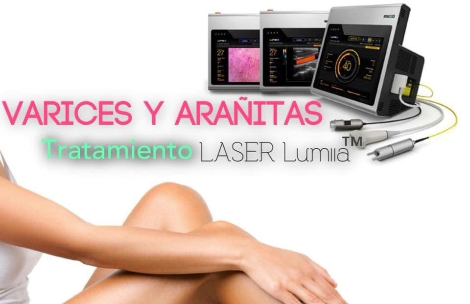 eliminar varices con laser