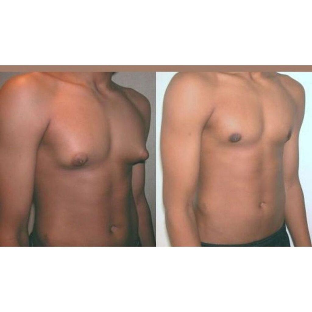 tratamientos para reducir senos en hombres
