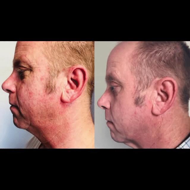 tratamiento facial para hombre